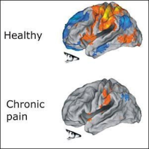 People with unrelenting pain are often depressed, anxious and have difficulty making simple decisions. Researchers have identified a clue that may explain how suffering long-term pain could trigger these other pain-related symptoms. Researchers found that in people with chronic pain, a front region of the cortex associated with emotion fails to deactivate when it should. It's stuck on full throttle, wearing out neurons and altering their connections.