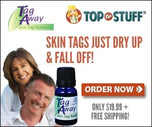 Tag Away Topical Skin Tag Removal Solution   ----Free Shipping