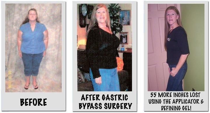 Gastric surgery to lose weight image 3