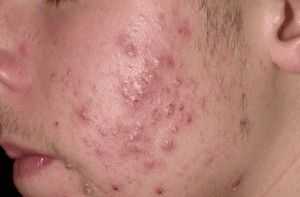 Tratament cu lipitori pentru acnee