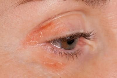 Causes of Dry Skin Around Eyes | LIVESTRONG.COM