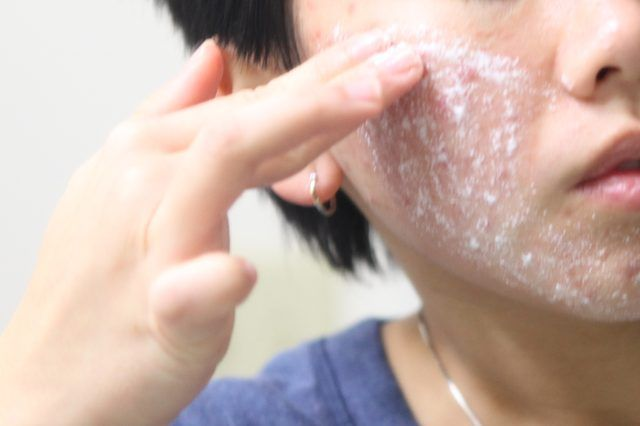 Homemade Salicylic Acid Peel