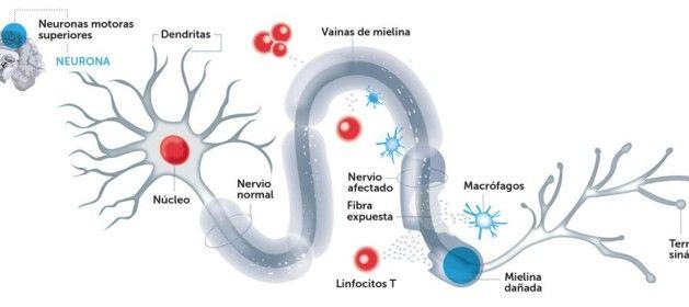 La esclerosis múltiple actualmente es la segunda causa de invalidez entre la población joven, sólo por detrás de los accidentes de tráfico. Desde hace...