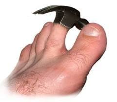 Hammer Toes: Care and Treatment