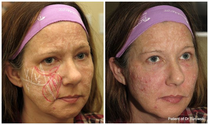 Facial implants chicago