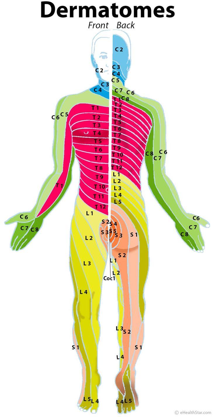 Dermatomes: cervical, lumbar, sacral; herniated disc
