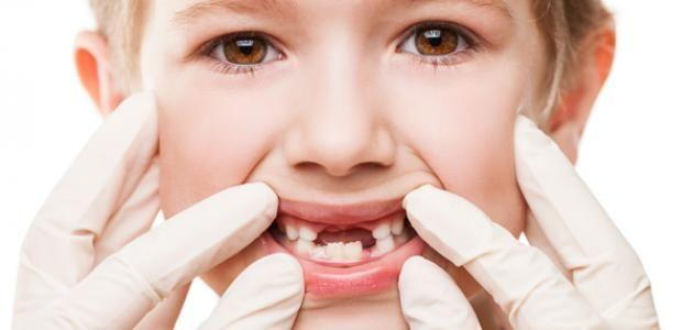 تفسير حلم سقوط الأسنان للحامل بدون دم في المنام الاسنان الاسنان في الحلم الاسنان في المنام الحامل Dentist Oral Health Dental
