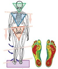 psoas muscle LLD - Google Search