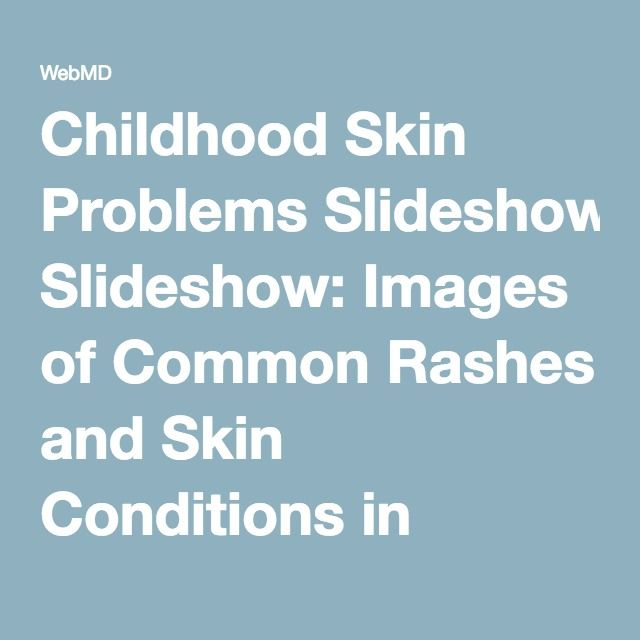 Childhood Skin Problems Slideshow: Images of Common Rashes and Skin Conditions in Children