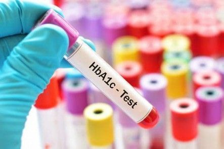 What Is HbA1c and A Normal HbA1c Range? Explained In Plain English #diabetes #hba1c #hemoglobina1c #bloodsugar #diabetes #diabetic #insulin