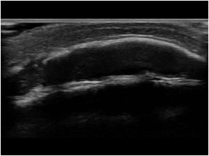 Calcified cephalic hematoma