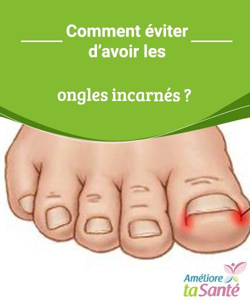 Comment éviter d'avoir les ongles incarnés ?   Les ongles incarnés sont plus fréquents qu'on ne le pense ! Venez découvrir des moyens simples pour prévenir ce problème si douloureux.