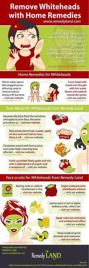 Remove whiteheads with home remedies #skin #remedies