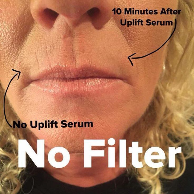Younique uplift eye serum. Botox in a bottle! See result immediately. Can be used all over face, neck and hands. Can also help scars and stretch marks!  https://www.facebook.com/YouniquebyHeathermaiorana/?ref=bookmarks