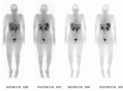 OctreoScan, a Nuclear Medicine imaging study to detect neuroendocrine tumors