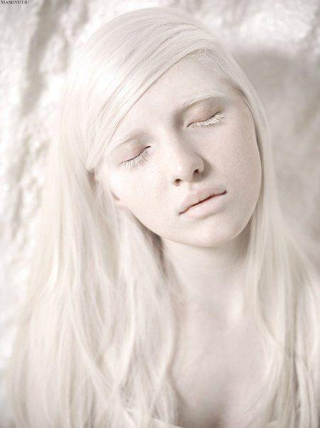 Beautiful Albino People - Hot Girls Wallpaper