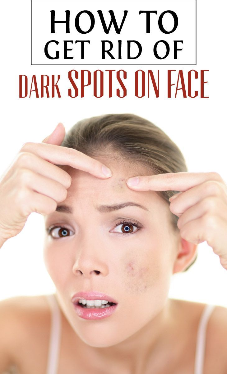 How to get rid of dark spots on face dark spots on face