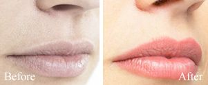 How lip filler injections can change the way your lips look?  #Lipenhancement #beforeandafter