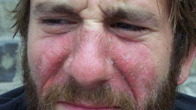 EL UNIVERSAL PERU: Rosácea: síndrome de la cara roja