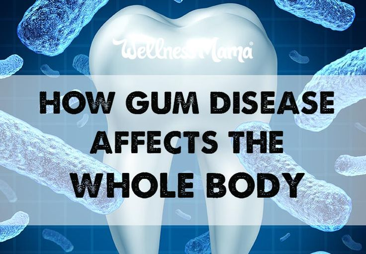 Gum disease impacts the whole body and increases the risk of heart disease, diabetes & cancer. Fight it with good immune health and oral health products.