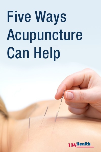 Five Ways Acupuncture Can Help in Cancer Care