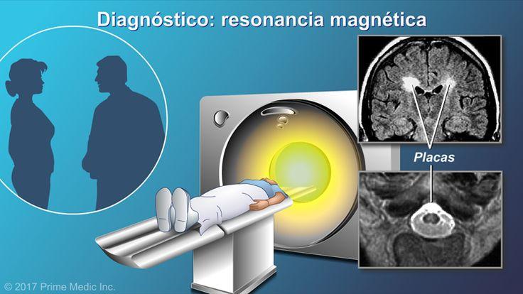 Luego se realiza una resonancia magnética, la cual es una técnica particularmente eficaz para obtener imágenes del cerebro y de la médula espinal. En una imagen por resonancia magnética, las placas de EM se ven como manchas blancas.slide show: el diagnóstico de la esclerosis múltiple. en esta presentación de diapositivas se describen las herramientas y pruebas utilizadas para diagnosticar la esclerosis múltiple em, así como los síntomas que podrían indicar la presencia de em. además, en la…