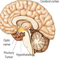 Pituitary Tumour Symptoms And Treatment