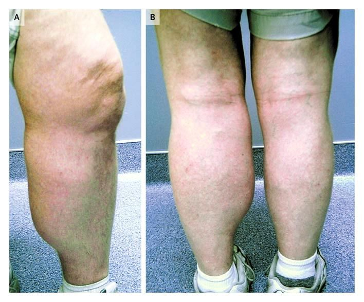 Baker's Cyst in a Patient with Rheumatoid Arthritis — NEJM