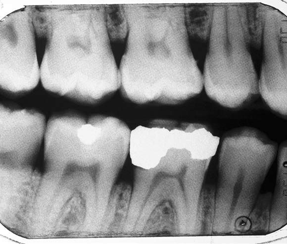The debate over dental amalgam essay