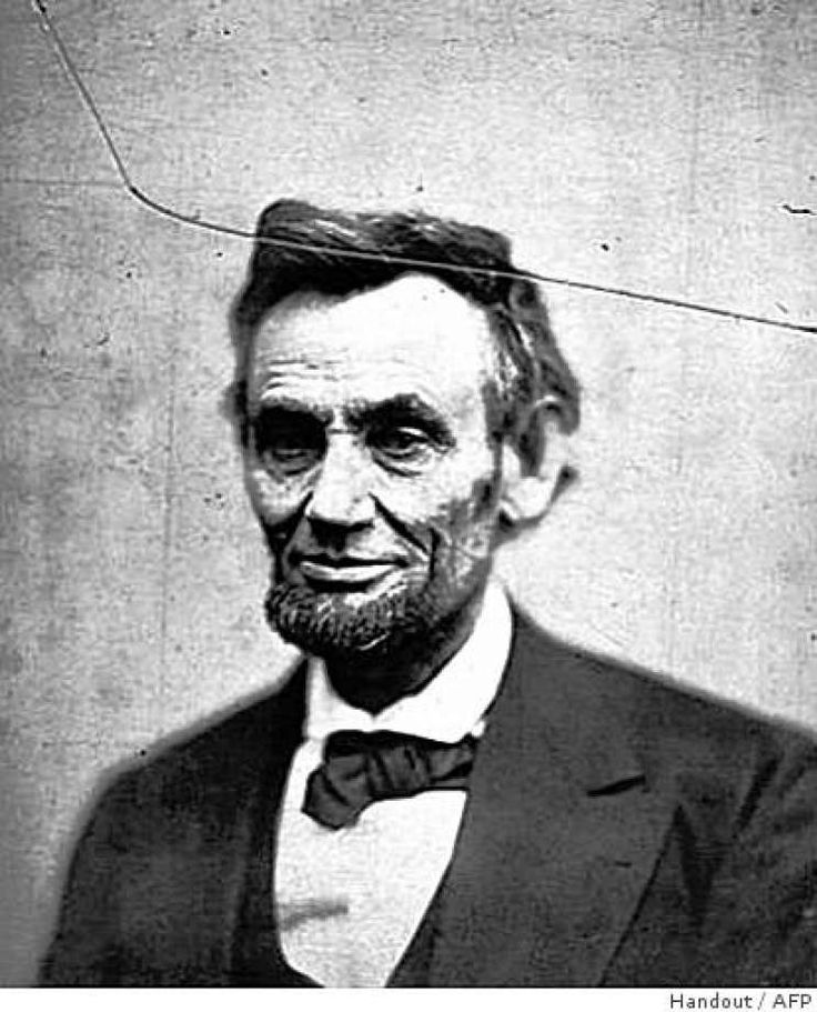 Doctor thinks Lincoln is first recorded case of rare genetic disease    Abraham Lincoln had cancer when he was assassinated and was unlikely to have survived a year, a physician suspects. Photo: Handout, AFP