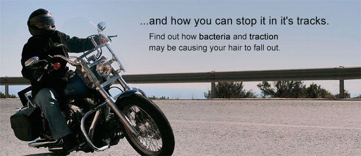 Does Wearing a Helmet Cause Hair Loss?