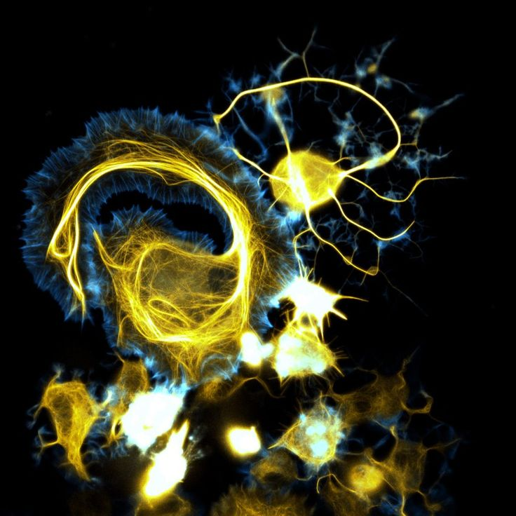 There are approximately 100 billion nerve cells in an adult brian. Each of those communicate with as many as 1,000 other nerves throughout the human body. It's the most complex system in the human body and to study it, scientists use a substance that makes the nerve fluoresce in a scan. The researchers then take pictures of the nerves in action.