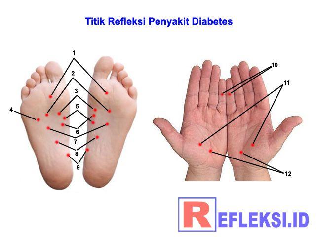 Cara mengobati kencing manis dengan terapi pijat refleksi, gambar letak titik refleksi diabetes melitus di telapak kaki dan tangan kanan dan kiri lengkap