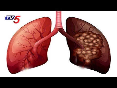 Lung Cancer Causes Symptoms & Treatment | Omega Hospitals | Health File | TV5 News - WATCH THE VIDEO   *** symptoms of lung cancer ***   Lung Cancer Causes Symptoms & Treatment | Omega Hospitals | Health File 'TV5 News' is 'Telugu Live news' which gives 24 Hours 'Live News' covering 'politics news', 'sports news',...