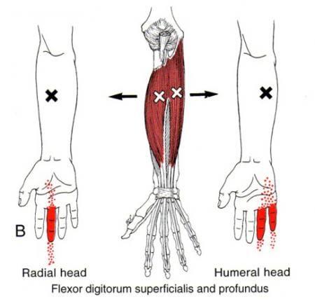 Flexor Digitorum Superficialis | The Trigger Point & Referred Pain Guide