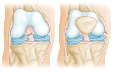 """""""Combined Knee Ligament Injuries"""" from OrthoInfo, """"Your connection to expert orthopaedic information.""""  Source:  American Academy of Orthopaedic Surgeons (AAOS)."""