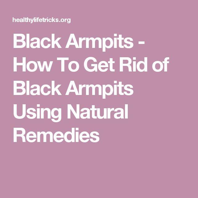 Black Armpits - How To Get Rid of Black Armpits Using Natural Remedies