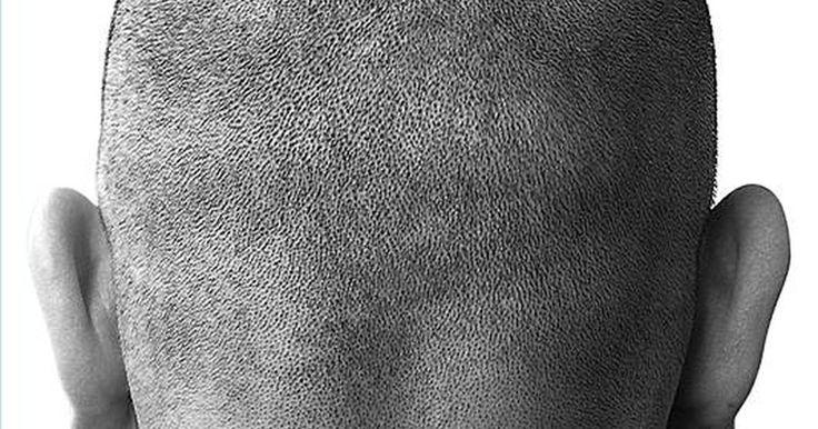 Tratamentos com esteroide para alopecia areata. A alopecia areata é uma doença autoimune onde os anticorpos atacam os folículos capilares, causando a parada ou diminuição do crescimento dos cabelos. O tratamento mais comum para isso é o tratamento com corticoide, que pode fortalecer e estimular o crescimento do cabelo.