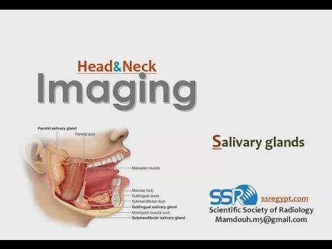 Imaging of Salivary glands- Prof Dr. Mamdouh Mahfouz (In Arabic) - YouTube