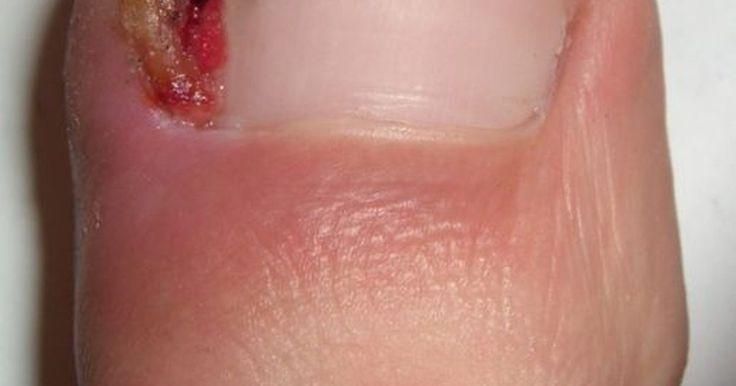 Como tratar unhas do pé encravadas com remédios caseiros. Unha encravada é o termo mais comum para a doença ungueal chamada onicocriptose. Essa condição dolorosa afeta principalmente o dedão, quando um ou ambos os lados da unha comprime-se no interior da pele adjacente ou leito ungueal, causando a inflamação. A não ser que se adotem medidas precocemente e sejam prestados os cuidados apropriados, uma unha ...