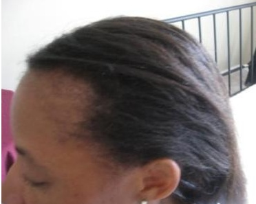 Male Pattern Baldness This Pattern Of Hair Loss Can