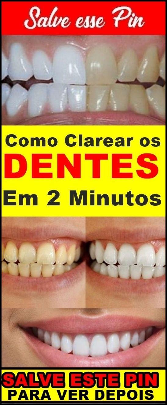 Como Clarear Os Dentes Em 1 Minuto Passo A Passo Beleza E