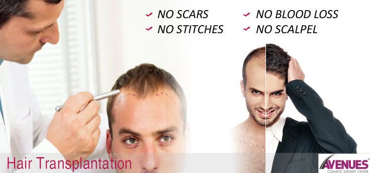 If you are willing to have Hair Loss Treatment in Ahmedabad, you may have it in the Avenues clinic that is a trusted destination for hair loss restoration providing latest and advanced hair restoration treatments. Hair transplant is the main treatment to treat the baldness and modern procedures of hair transplant surgery are treating plenty of patients just because of the hard work of many of the hair loss researchers and doctors.