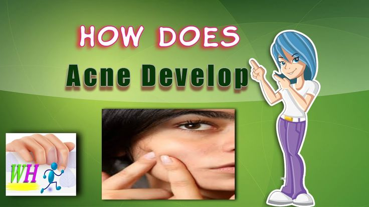 How Does Acne Develop, how to remove pimple marks form your skin
