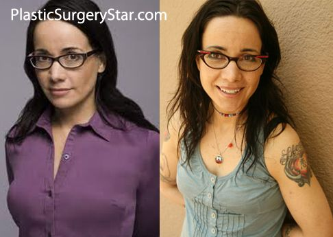 Pin On Celebrity Breast Reduction Before Amp After