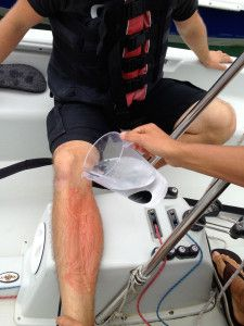 First Aid Afloat – Jellyfish Stings