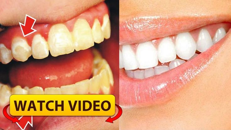 Be your own dentist see how to remove the plaque from