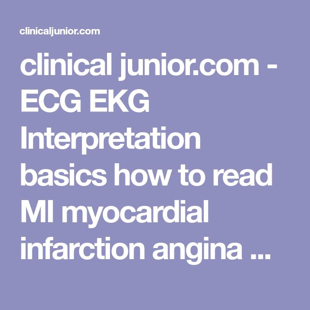 clinical junior.com - ECG EKG Interpretation basics how to read MI myocardial infarction angina AF atrial fibrillation ST elevation depression