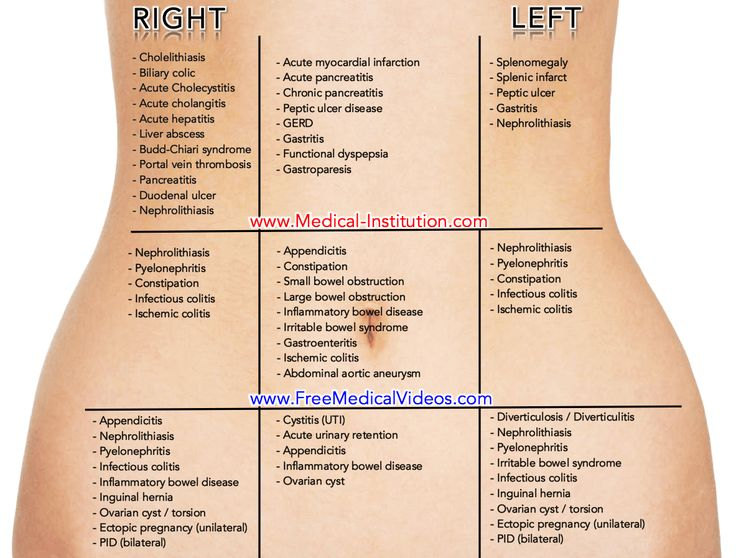 32 Best Medical Mnemonics Images On Pinterest Medical