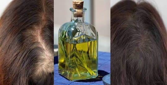 Olio di rosmarino: un rimedio contro il diradamento dei capelli | Rimedio Naturale